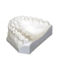 Ortodontiniai gipsai